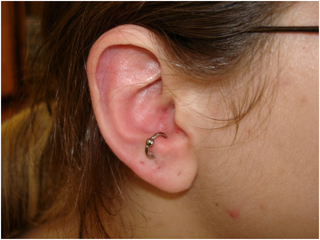 The Anti-tragus Piercing