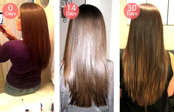 keranique hair regrowth