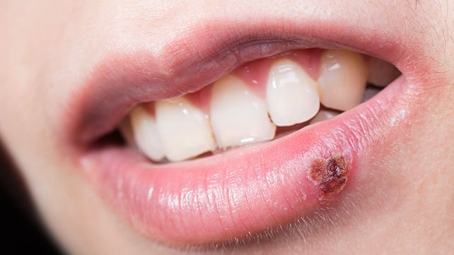 How To Get Rid of Cold Sores on Lips