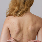 How To Get Rid Of Back Acne Help