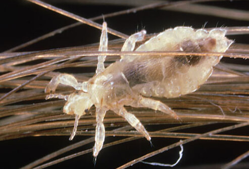 head_lice_louse_on_human_hair