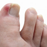 How to Get Rid of an Ingrown Toenail