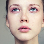 8 Highly Effective Natural Remedies For Puffy Eyes