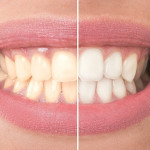 5 Gentle And Effective Teeth Whitening Remedies That Actually Work