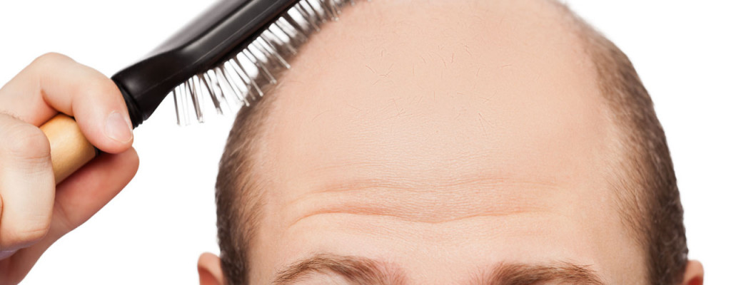 Top 4 Best Treatments for Hair Loss: Detailed product reviews