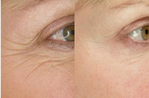 NuPlenish-serum-for-wrinkles-before-and-after