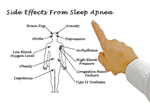 side-effects-of-snoring