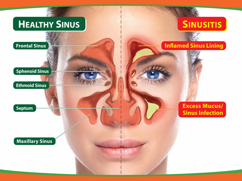 Sinusitis feature