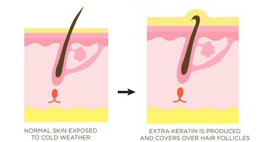 causes for keratosis pilaris