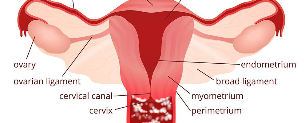 Top 4 Home Remedies for Vaginal Yeast Infection